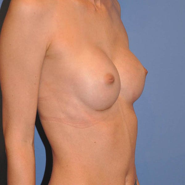 Breast Augmentation Gallery - Patient 13574632 - Image 4