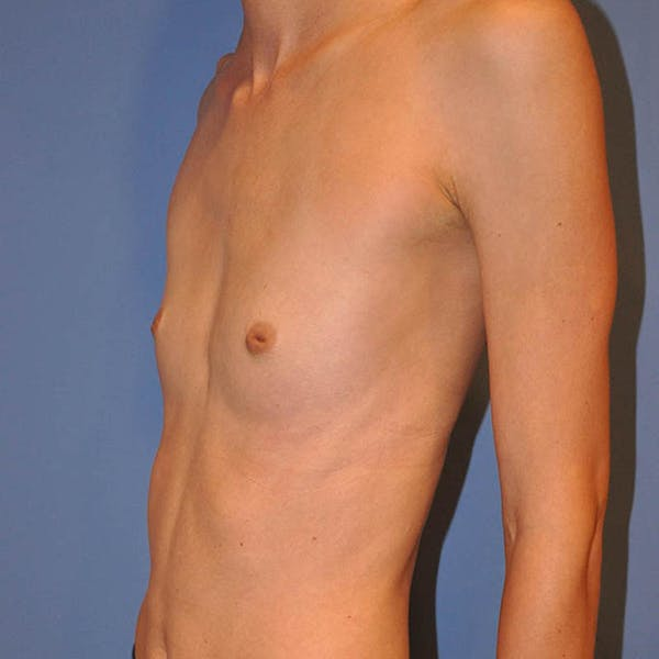 Breast Augmentation Gallery - Patient 13574632 - Image 5