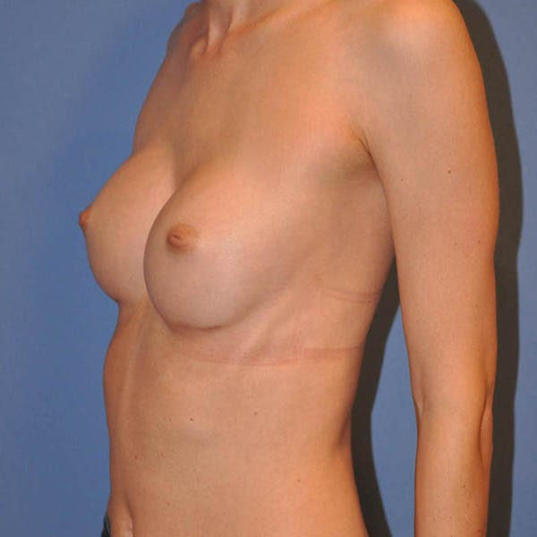 Breast Augmentation Gallery - Patient 13574632 - Image 6