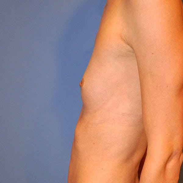 Breast Augmentation Gallery - Patient 13574632 - Image 7