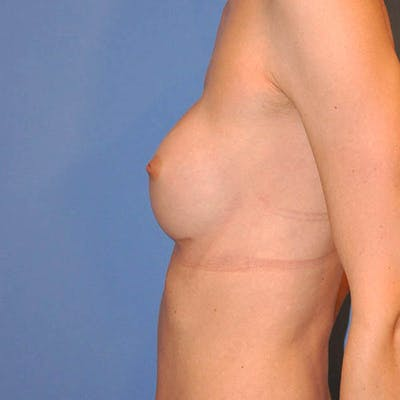 Breast Augmentation Gallery - Patient 13574632 - Image 8