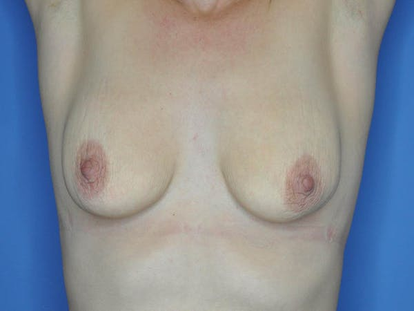 Breast Augmentation Gallery - Patient 13574637 - Image 1
