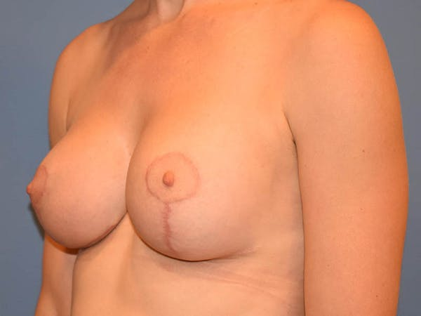 Breast Augmentation Gallery - Patient 13574637 - Image 4