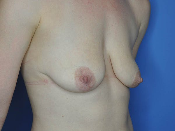 Breast Augmentation Gallery - Patient 13574637 - Image 5