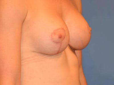 Breast Augmentation Gallery - Patient 13574637 - Image 6