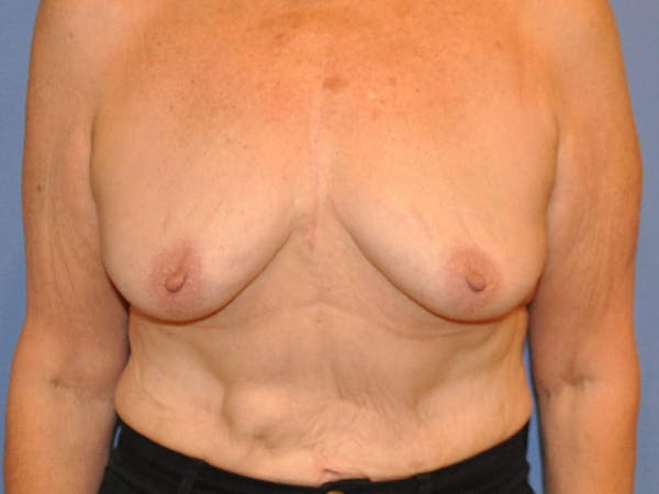 Breast Augmentation Gallery - Patient 13574640 - Image 1