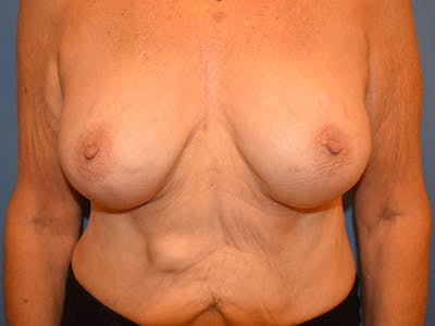 Breast Augmentation Gallery - Patient 13574640 - Image 2