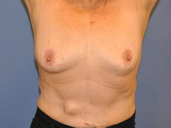 Breast Augmentation Gallery - Patient 13574640 - Image 3