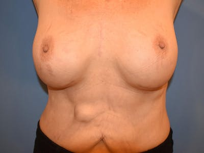 Breast Augmentation Gallery - Patient 13574640 - Image 4