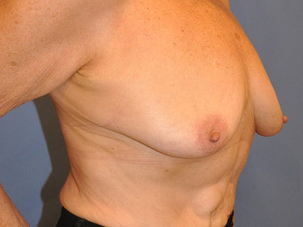 Breast Augmentation Gallery - Patient 13574640 - Image 5