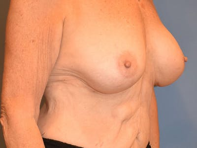 Breast Augmentation Gallery - Patient 13574640 - Image 6