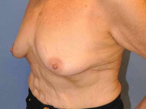 Breast Augmentation Gallery - Patient 13574640 - Image 7