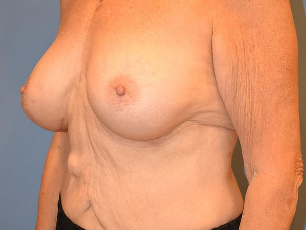 Breast Augmentation Gallery - Patient 13574640 - Image 8