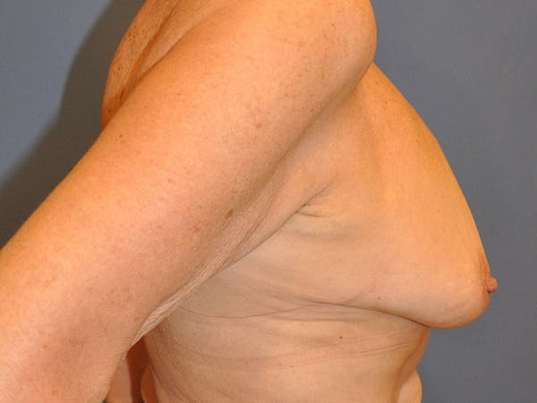 Breast Augmentation Gallery - Patient 13574640 - Image 9