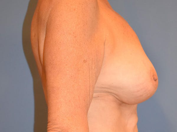 Breast Augmentation Gallery - Patient 13574640 - Image 10