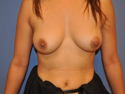 Breast Augmentation Gallery - Patient 13574643 - Image 1