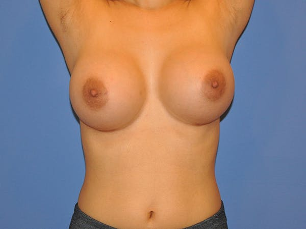 Breast Augmentation Gallery - Patient 13574643 - Image 2