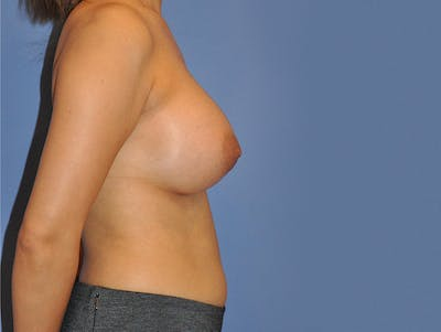 Breast Augmentation Gallery - Patient 13574643 - Image 4