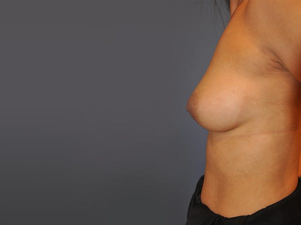 Breast Augmentation Gallery - Patient 13574643 - Image 5