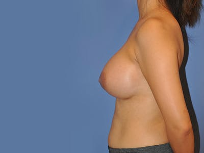 Breast Augmentation Gallery - Patient 13574643 - Image 6