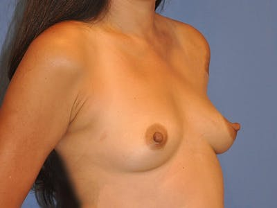 Breast Augmentation Gallery - Patient 13574647 - Image 1