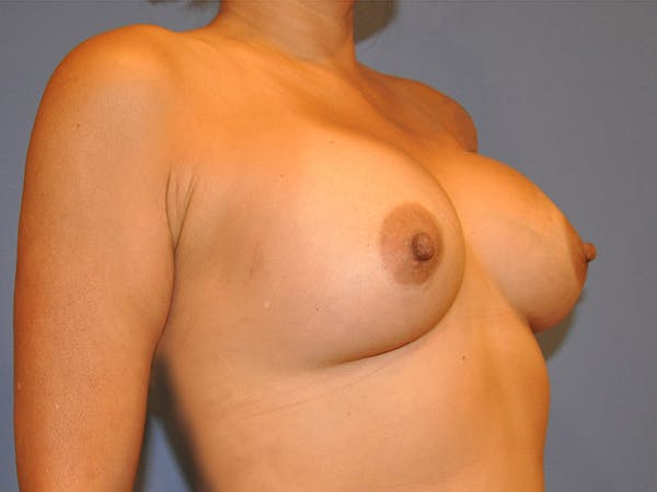 Breast Augmentation Gallery - Patient 13574647 - Image 2