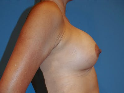 Breast Augmentation Gallery - Patient 13574647 - Image 4