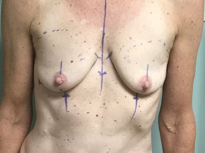 Breast Augmentation Gallery - Patient 13574652 - Image 1