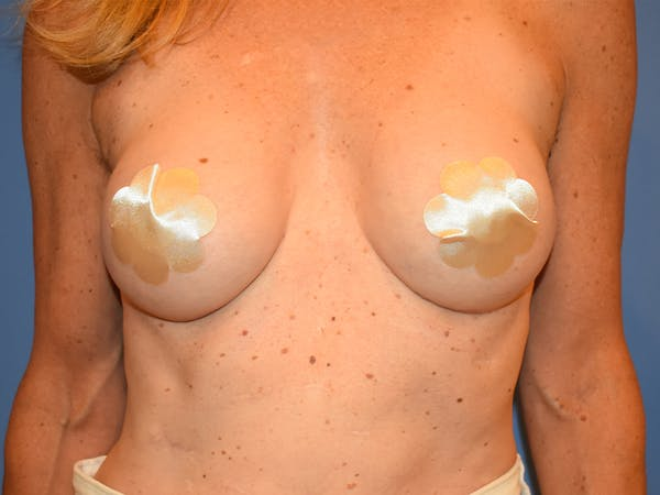 Breast Augmentation Gallery - Patient 13574652 - Image 2