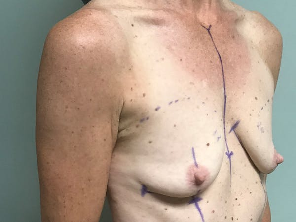 Breast Augmentation Gallery - Patient 13574652 - Image 3