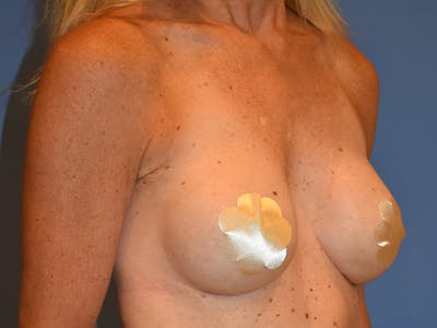 Breast Augmentation Gallery - Patient 13574652 - Image 4