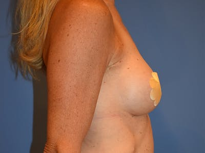 Breast Augmentation Gallery - Patient 13574652 - Image 6