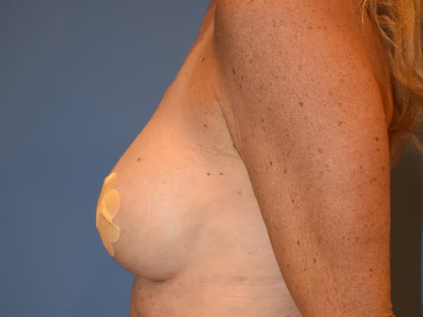 Breast Augmentation Gallery - Patient 13574652 - Image 8