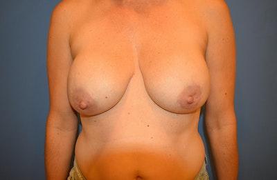 Implant Exchange Gallery - Patient 13574658 - Image 1