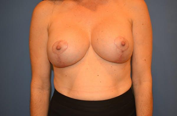 Implant Exchange Gallery - Patient 13574658 - Image 2