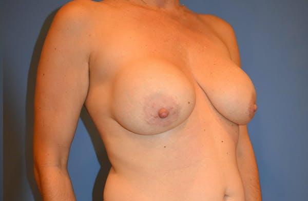 Implant Exchange Gallery - Patient 13574658 - Image 3