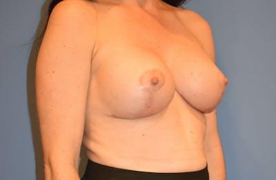 Implant Exchange Gallery - Patient 13574658 - Image 4