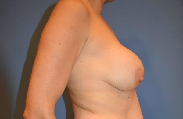 Implant Exchange Gallery - Patient 13574658 - Image 5