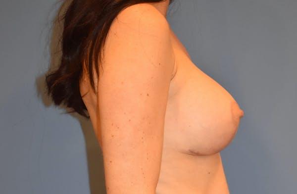 Implant Exchange Gallery - Patient 13574658 - Image 6
