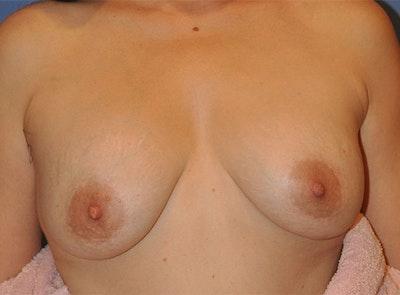 Implant Exchange Gallery - Patient 13574660 - Image 1