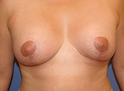 Implant Exchange Gallery - Patient 13574660 - Image 2