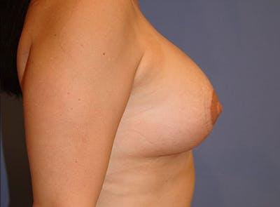 Implant Exchange Gallery - Patient 13574660 - Image 6