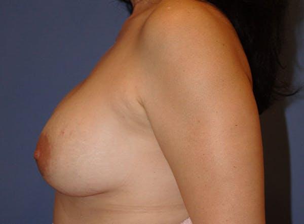 Implant Exchange Gallery - Patient 13574660 - Image 7