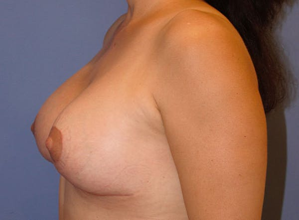 Implant Exchange Gallery - Patient 13574660 - Image 8