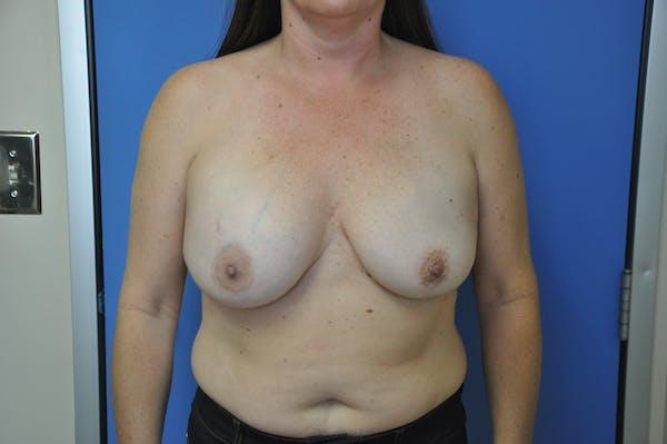 Implant Exchange Gallery - Patient 13574661 - Image 1