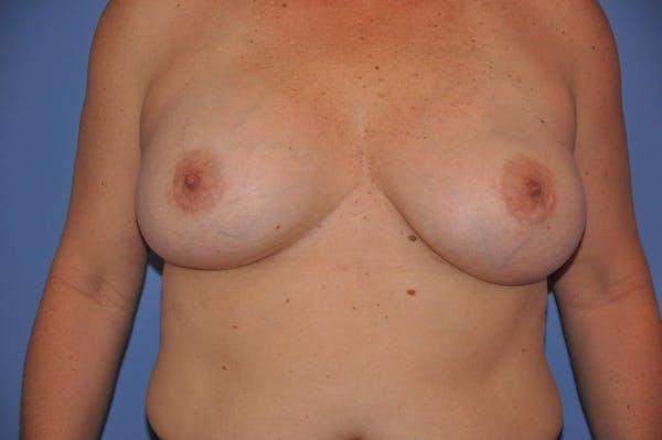 Implant Exchange Gallery - Patient 13574661 - Image 2