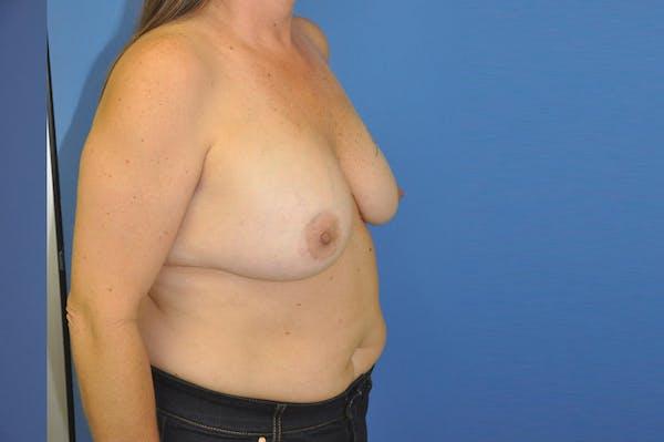 Implant Exchange Gallery - Patient 13574661 - Image 3