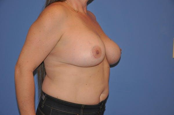 Implant Exchange Gallery - Patient 13574661 - Image 4