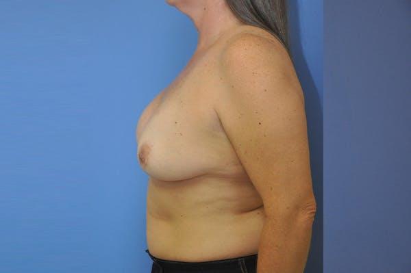 Implant Exchange Gallery - Patient 13574661 - Image 5
