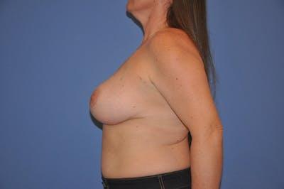 Implant Exchange Gallery - Patient 13574661 - Image 6